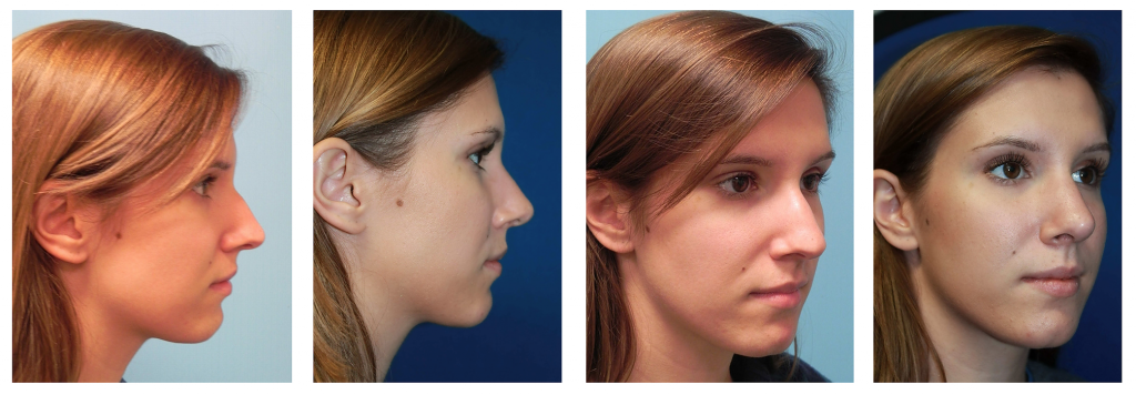 Rhinoplasty Nashville, TN