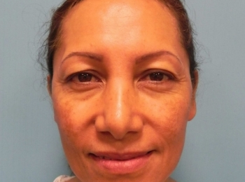Front Before Facial Fat Transfer