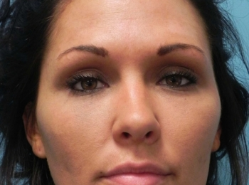 Front After Facial Fat Transfer