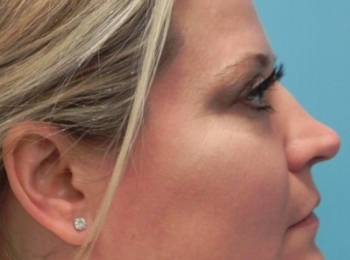 Side After Facial Fat Transfer