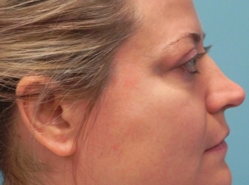 Side Before Facial Fat Transfer
