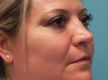 Turn After Facial Fat Transfer