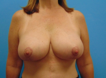 After Frontal Breast Augmentation with a Lift