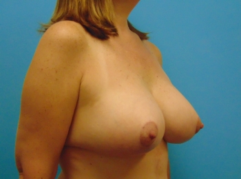 After Oblique Breast Augmentation with a Lift