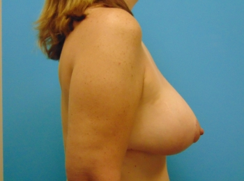 After Side Breast Augmentation with a Lift