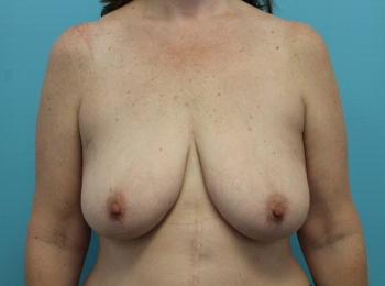 Before Frontal Breast Augmentation with a Lift