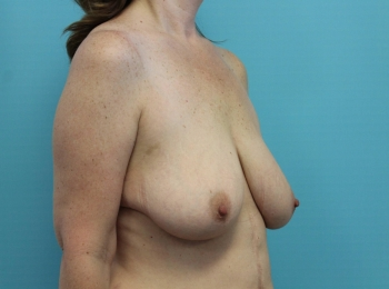 Before Oblique Breast Augmentation with a Lift