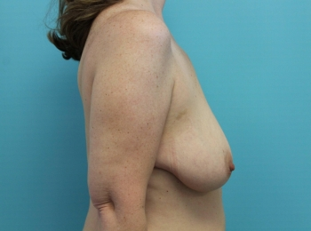 Before Side Breast Augmentation with a Lift