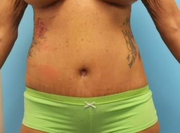Abdominoplasty - Front After Procedure