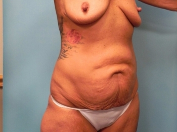 Abdominoplasty - Turn Before Procedure