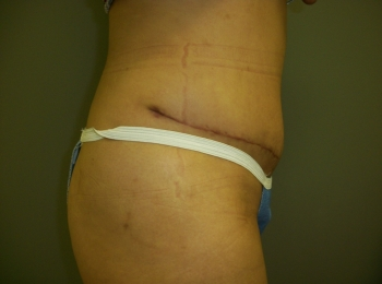 Abdominoplasty After Side.jpg