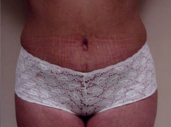 Abdominoplasty After Frontal.jpg