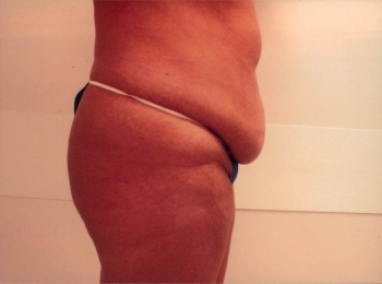 Abdominoplasty Before Side.jpg