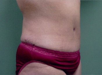Abdominoplasty After Turn.jpg