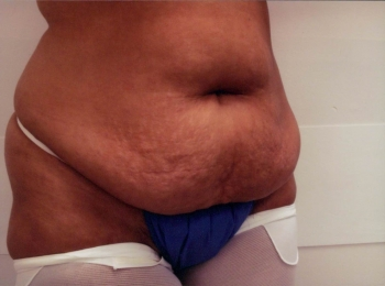 Abdominoplasty Before Turn.jpg