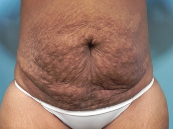 Abdominoplasty - Front Before Procedure
