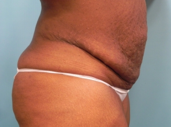 Abdominoplasty - Side Before Procedure