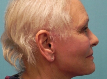 Facelift Side View After Procedure