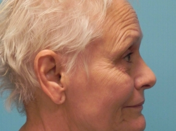 Facelift Side View Before Procedure