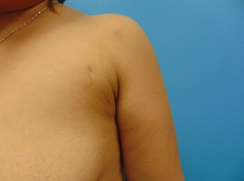 After-SlimLipo-Anterior-Axillary-Left