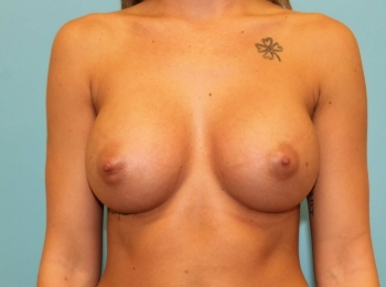 Breast Augmenation - Front After Procedure