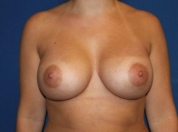 Frontal After Breast Augmentation.jpg