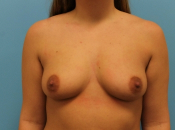 Frontal Before Breast Augmentation 04.jpg