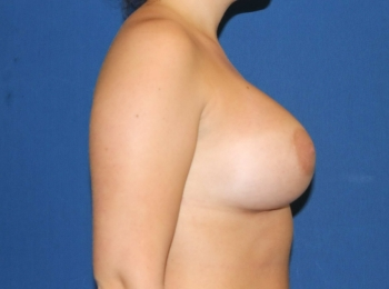 After Side Breast Augmentation.jpg