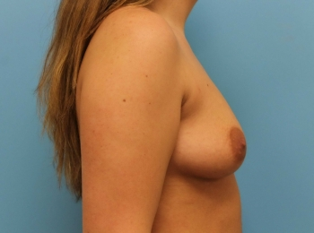 Before Side Breast Augmentation.jpg