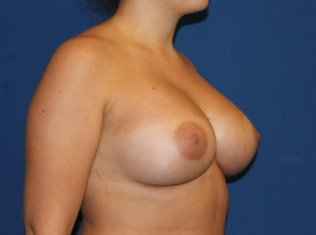 Turn AfterBreast Augmentation.jpg