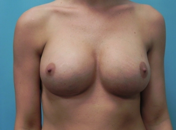 Breast Augmentation - Front After Revision