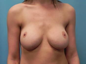 Breast Augmentation - Front Before Revision