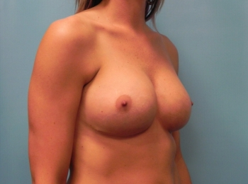 Breast Augmentation - Turn After Revision