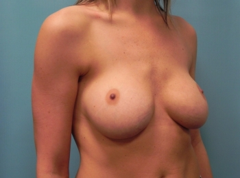 Breast Augmentation - Turn Before Revision