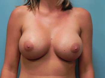 Breast Augmentation - Front After Procedure