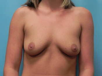 Breast Augmentation - Front Before Procedure