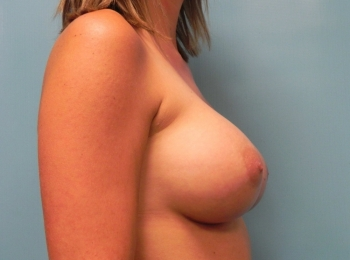 Breast Augmentation - Side After Procedure