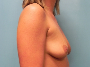 Breast Augmentation - Side Before Procedure