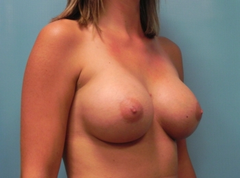 Breast Augmentation - Turn After Procedure