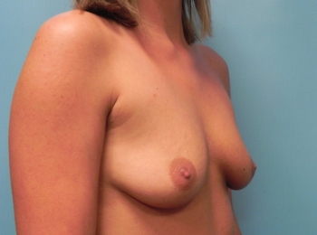 Breast Augmentation - Turn Before Procedure