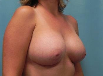 Breast Augmentation - After Procedure Turn
