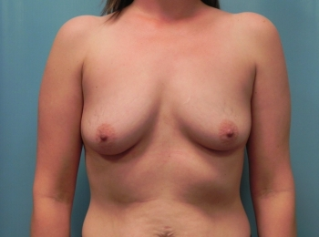 Breast Augmentation - Before Procedure Front