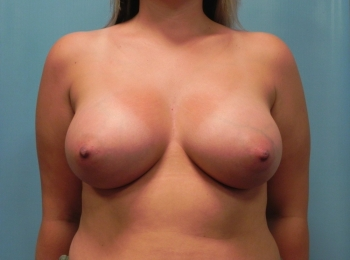 Breast Augmentation - After Procedure Front