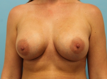 Breast Augmentation -  After Procedure Frontal