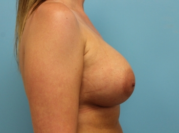 Breast Augmentation -  After Procedure Side