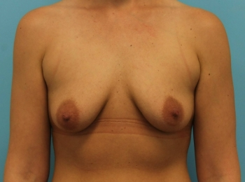 Breast Augmentation - Before Procedure Frontal