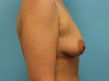 Breast Augmentation -  Before Procedure Side