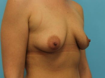 Breast Augmentation -  Before Procedure Turn