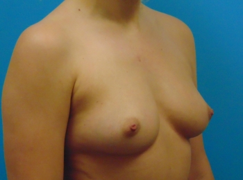 Oblique Before Saline 390cc
