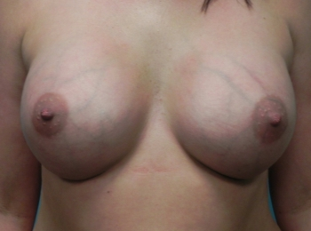 Breast Augmentation  After Frontal.jpg